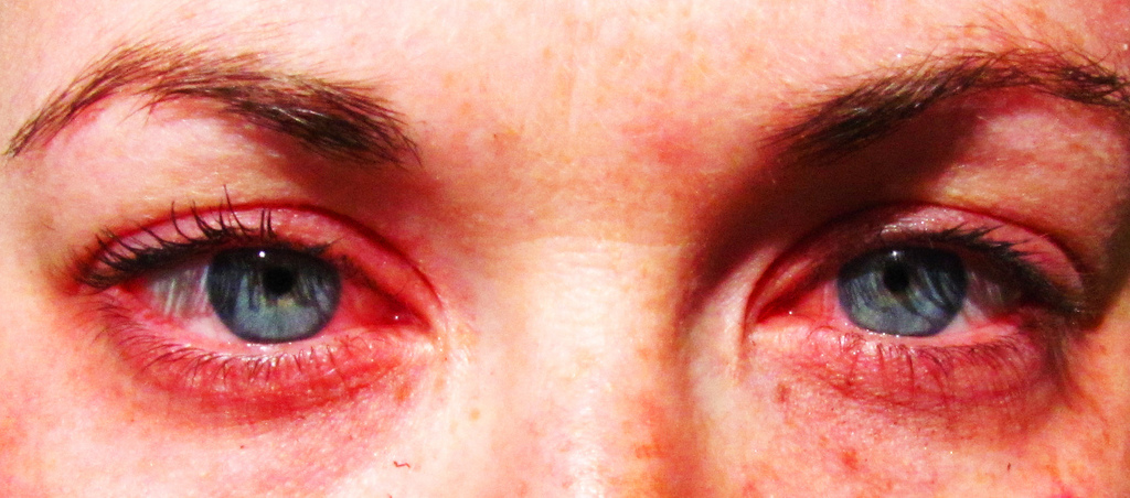 Eye Allergies MarijuanaWellness